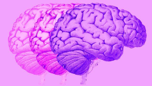 MIT brain topper
